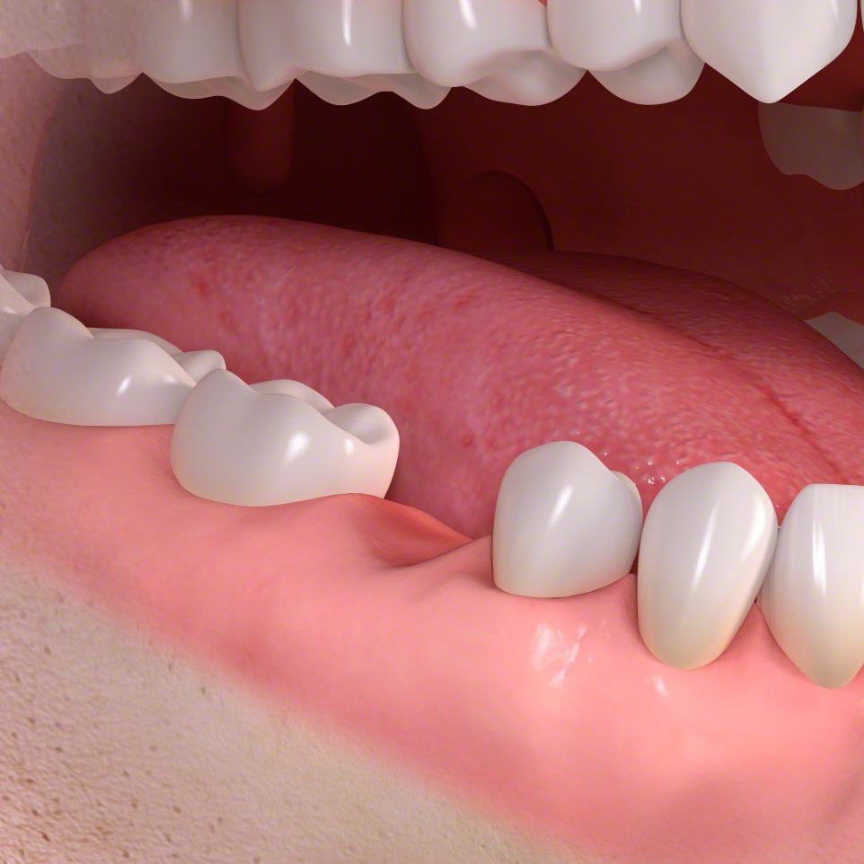 Impianto dentale_dente singolo_implantologia catania