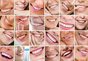 sorrisi-dentista-catania