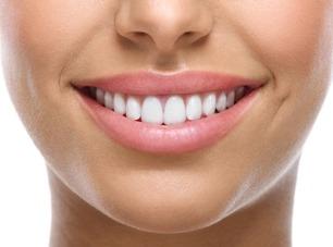 sorriso-ortodonzia-linguale-catania