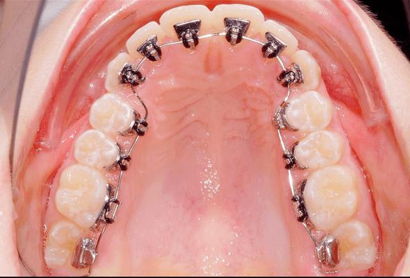 ortodonzia linguale con attacchi