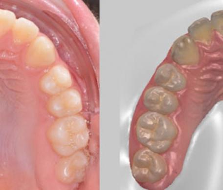 Mai più impronta dentale: ecco l'impronta ottica digitale dentale