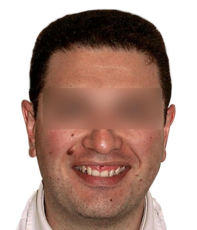 faccia(2)1