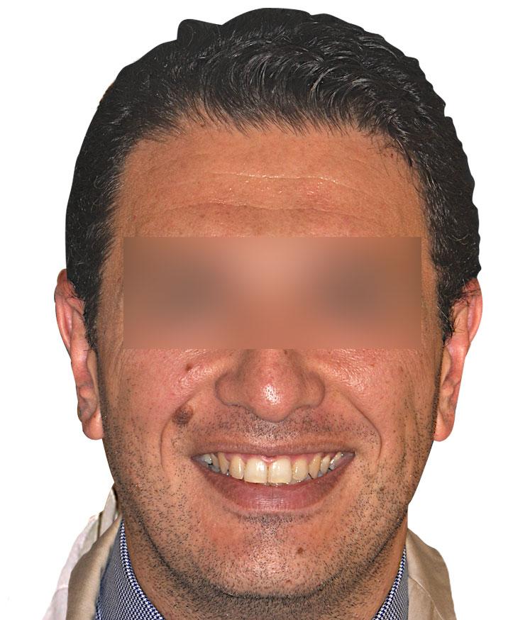 faccia(2)2