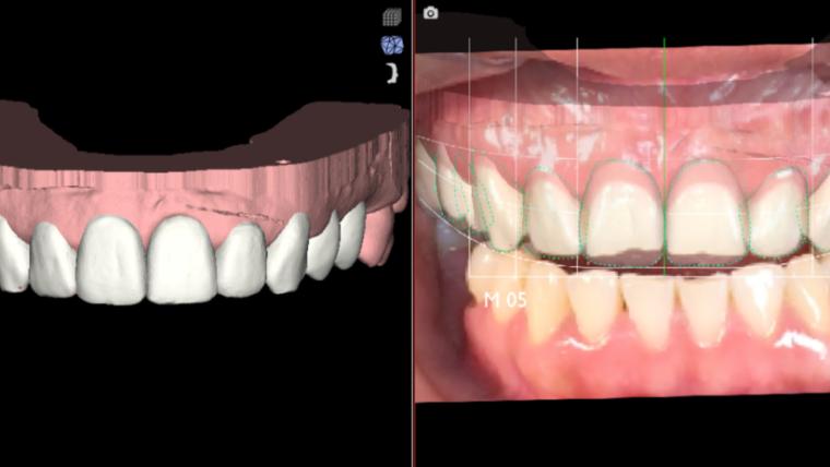 Smile designer, il dentista moderno