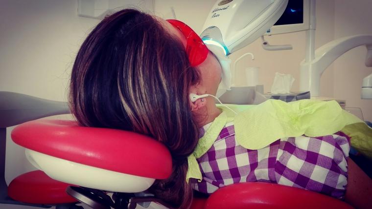 Sbiancamento dentale: Funziona? Quanto dura? Ne diverrò schiavo ? Quanto costa?