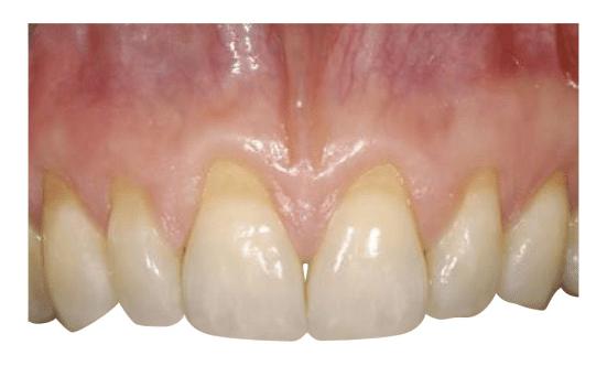 La recessione gengivale dovuto frequentemente a spazzolamento orizzontale aggressivo aumenta la sensibilità dentale