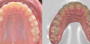 ecco l'impronta ottica digitale dentale