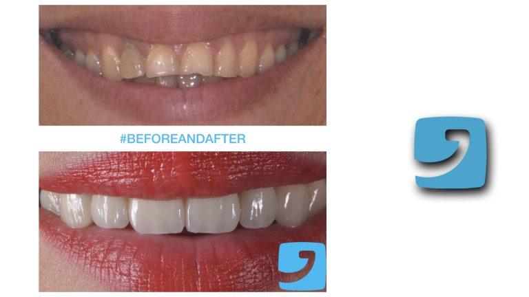 dente frontale rotto