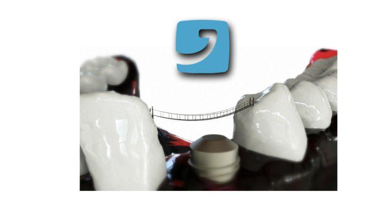 Rischi impianti dentali?