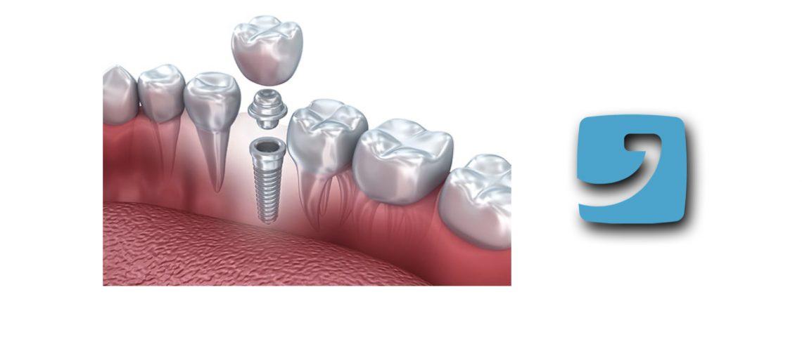 Ecco tutti i fattori che influenzano il costo di un impianto dentale